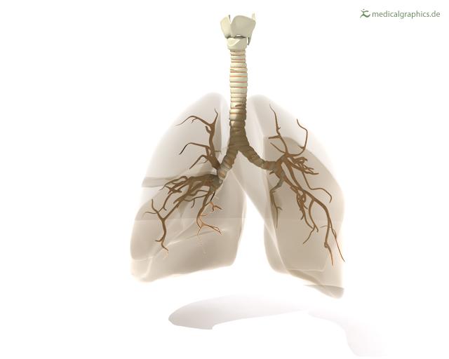 COPD mit Verschlechterung | Türkisch - Türkçe