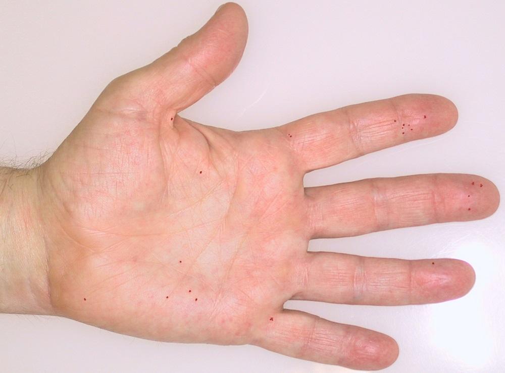 Morbus Osler – mehr als nur Nasenbluten