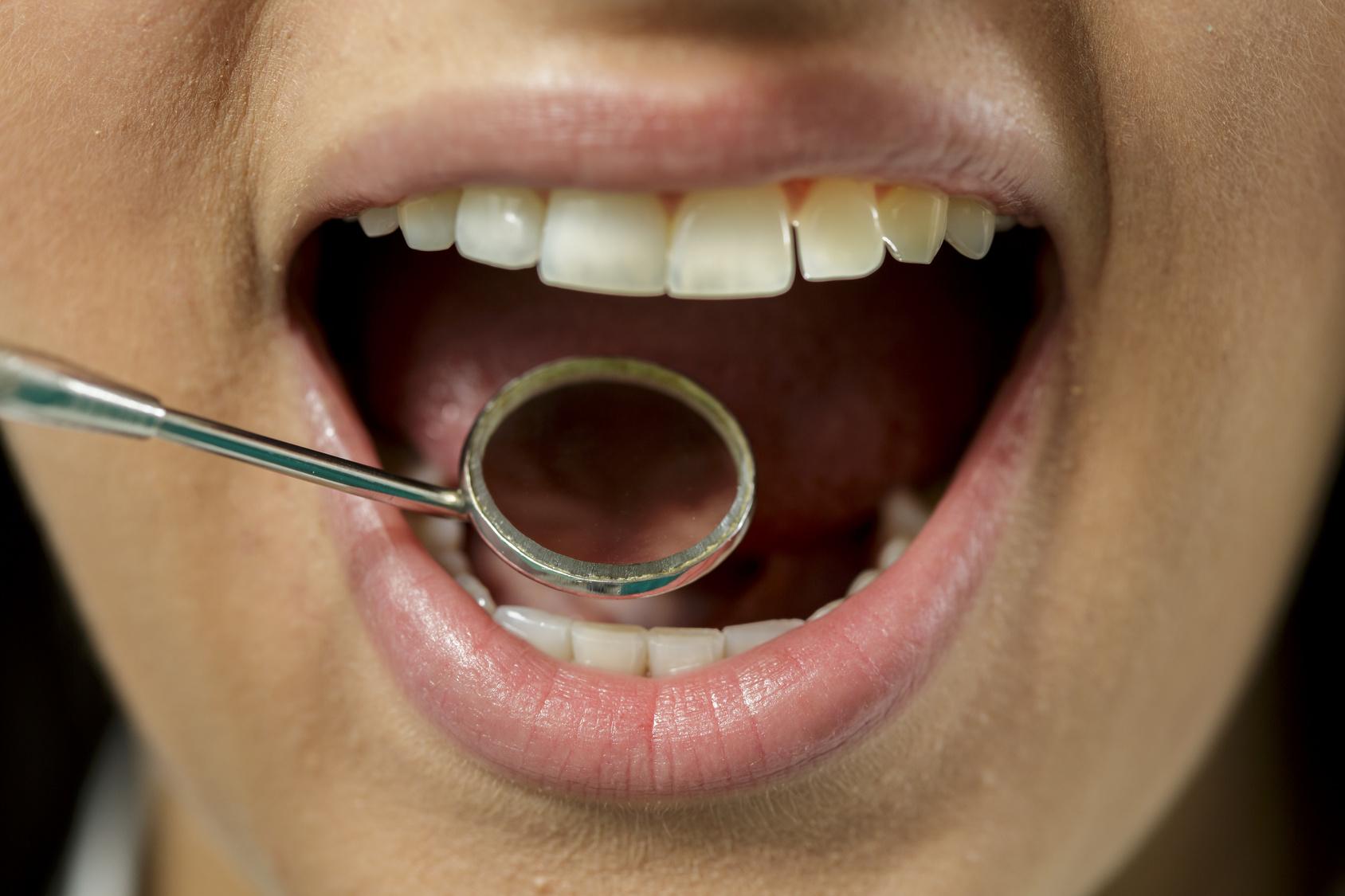 Krebs der Mundhöhle – Risikofaktoren und Anzeichen